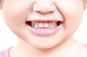 Obavezno lečite mlečne zube