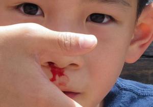 Krvarenje iz nosa kod dece