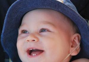 Da li rast zubića može izazvati osip na licu bebe?