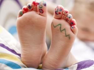 Ravna stopala - najčešći problem predškolaca