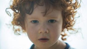 Sinuzitis – upala sinusa kod dece
