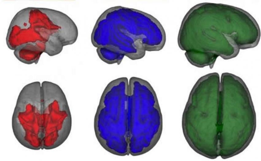 Neverovatan uticaj dojenja na razvoj delova mozga